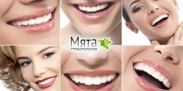 -75% на услуги стоматологии «Мята»