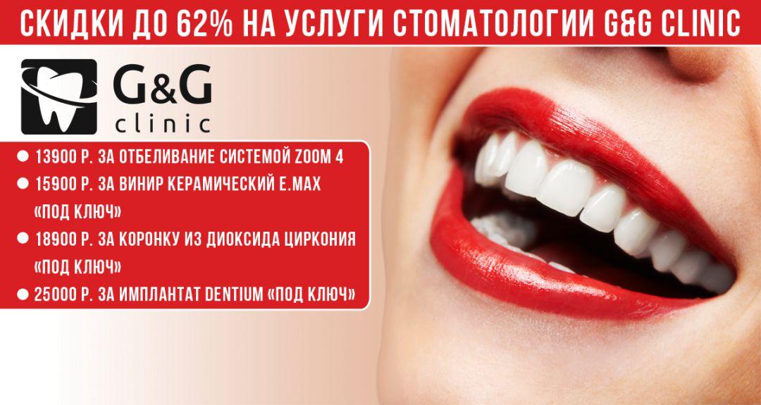 Скидки до 62% на услуги стоматологии G&G CLINIC
