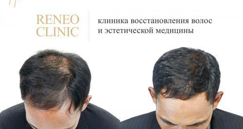 Скидки до 73% на пересадку и лечение волос