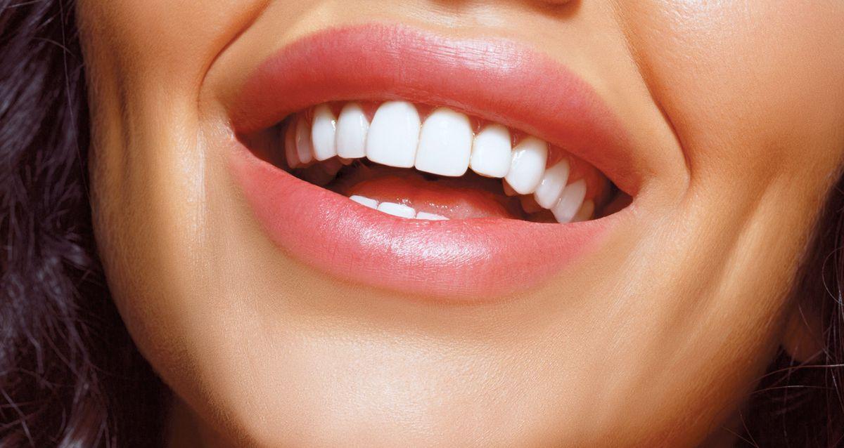 Голливудская улыбка: все о винирах и люминирах