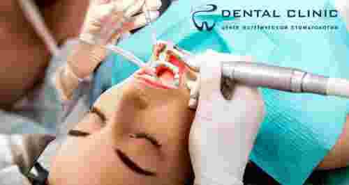Скидки до 70% от стоматологии Dental Clinic
