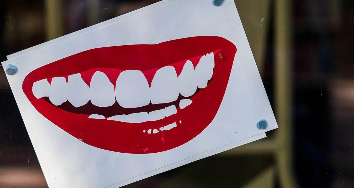 Отбеливание зубов: правда и мифы