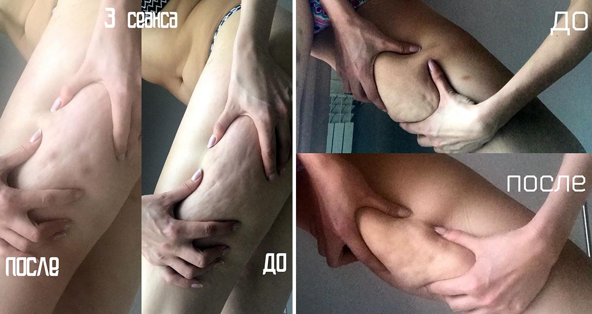результат лпг массажа