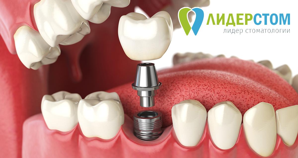 Зубные импланты нового поколения